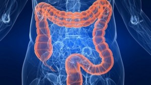 Probiotic-potential-Altering-gut-bacteria-shows-promise-for-fatty-liver-disease_strict_xxl